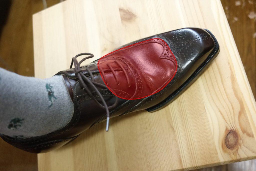 靴擦れが起きやすい箇所その 3:甲や指の付け根